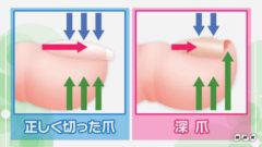 巻き爪の原因-爪の切り方