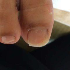 巻き爪-深爪