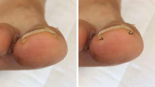 ホッチキス型の巻き爪-陥入爪