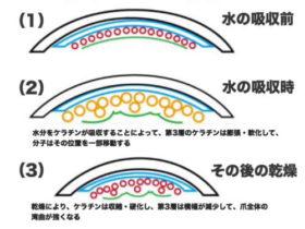 巻き爪の原因の解説