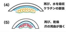 巻き爪の原因の解説-2