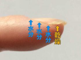 巻き爪原因-環境の変化